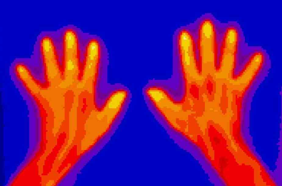 Thermographie der Hände